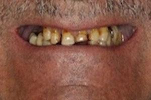 implants-2b