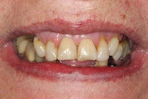 implants-3b